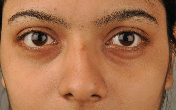 Puffy Eyes – Causes & Natural Home Remedies For Swollen Eyes